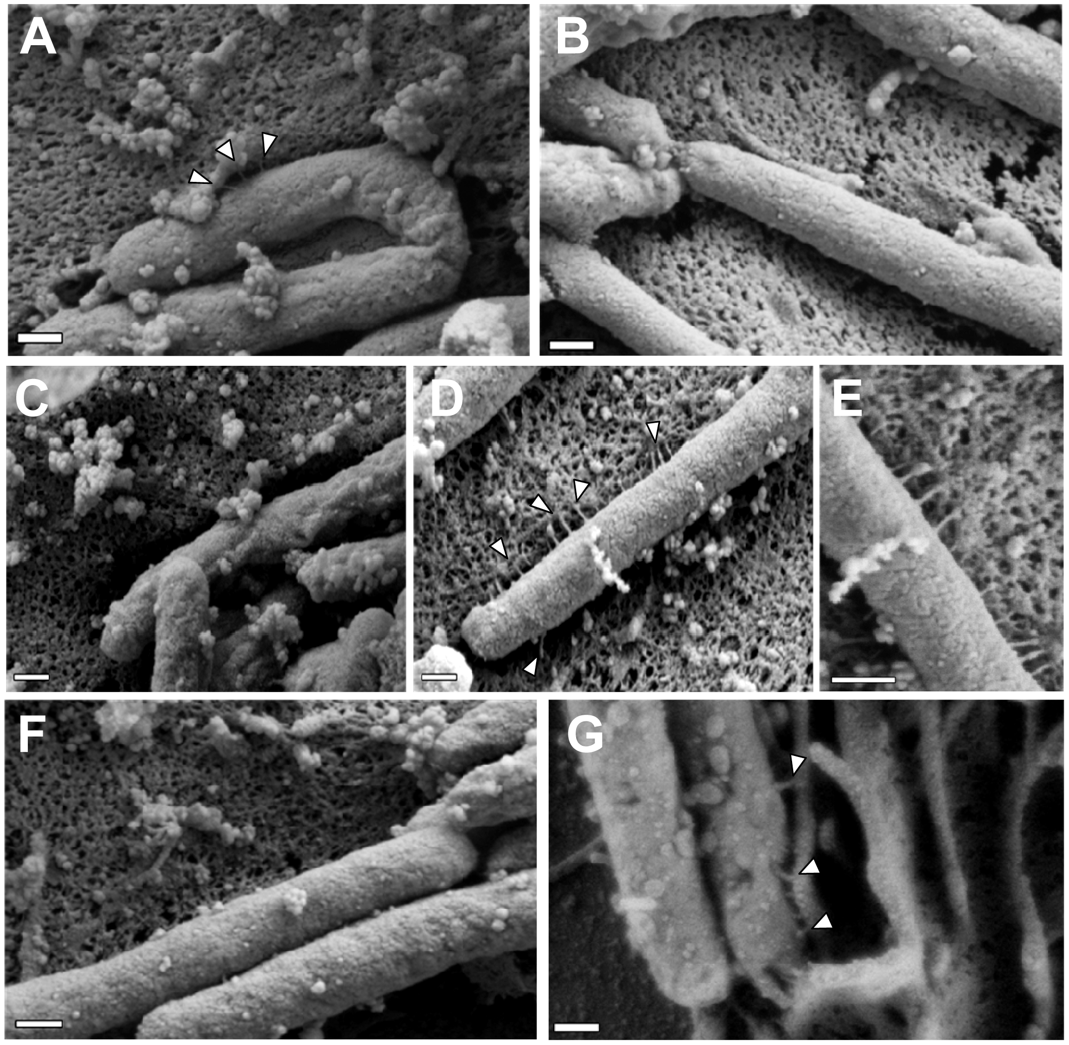 Role of CagI and CagL in pilus formation.