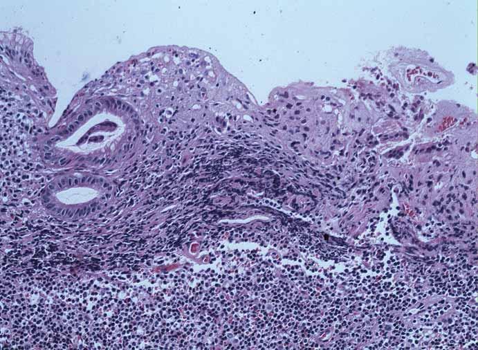 Histologická diagnóza, barvení hematoxylin-eozin. Fig. 4. Histologic diagnosis, haematoxylin-eosin staining.