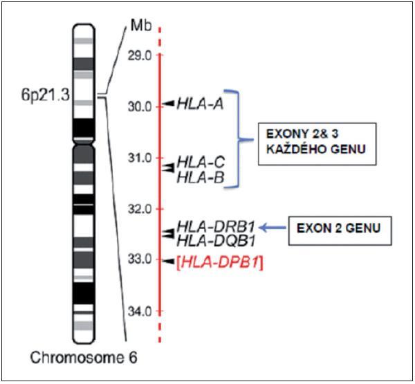 Výběr nepříbuzného dárce zahrnuje sekvenování specifických exonů minimálně u 4 různých genů na krátkém raménku chromozomu 6. Obrázek znázorňuje současně i lokalizaci HLA genů na chromozomu. Většina transplantačních center rutinně typizuje i exon 2 DQB1 genu, zatímco DPB1 gen se obvykle v procesu selekce nepříbuzného dárce rutinně nevyšetřuje. Převzato z Warrena et al. (5).