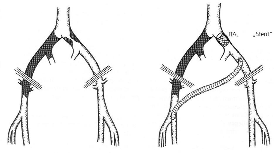 ITA, ITSA hemodynamicky závažnej stenózy AIC, prípadne AIE v spojení s cross-over femoro-femorálnym (ilio-femorálnym) bypassom  Fig. 1. ITA, ITSA of a hemodynamically serious AIC stenosis, alternatively AIE associated with cross-over femoro-femoral (ilio-femoral) bypass