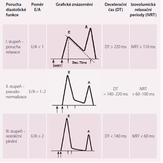 Hodnocení diastolické dysfunkce pomocí pulzní Dopplerovské echokardiografie.