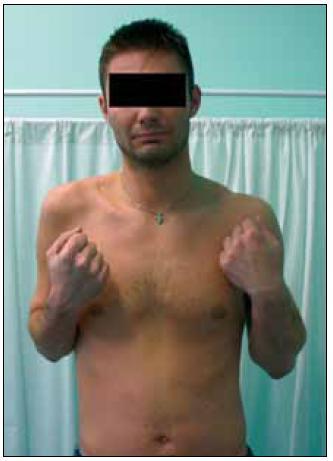 Pacient 14 měsíců po rekonstrukci n. musculocutaneus Oberlinovou technikou z n. ulnaris vpravo.