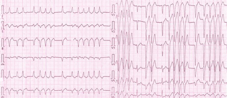 EKG pacientky při přijetí na Interní kardiologickou kliniku: na záznamu přítomny pouze 2 sinusové komplexy (PQ 0,14 ms, QRS 0,10 ms), převažují salvy monomorfních extrasystol se širokým QRS komplexem (QRS 120 ms) s inferiorní osou a negativní konkordancí v hrudních svodech, což s největší pravděpodobností svědčí o komorovém původu extrasystol.