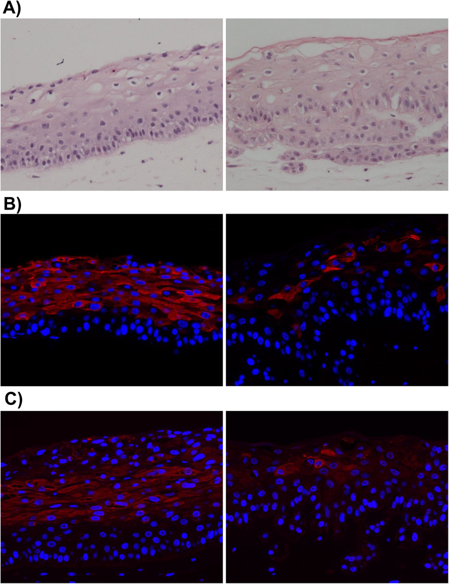 EBV-infected NOKs cells retain ability to be partially differentiated.