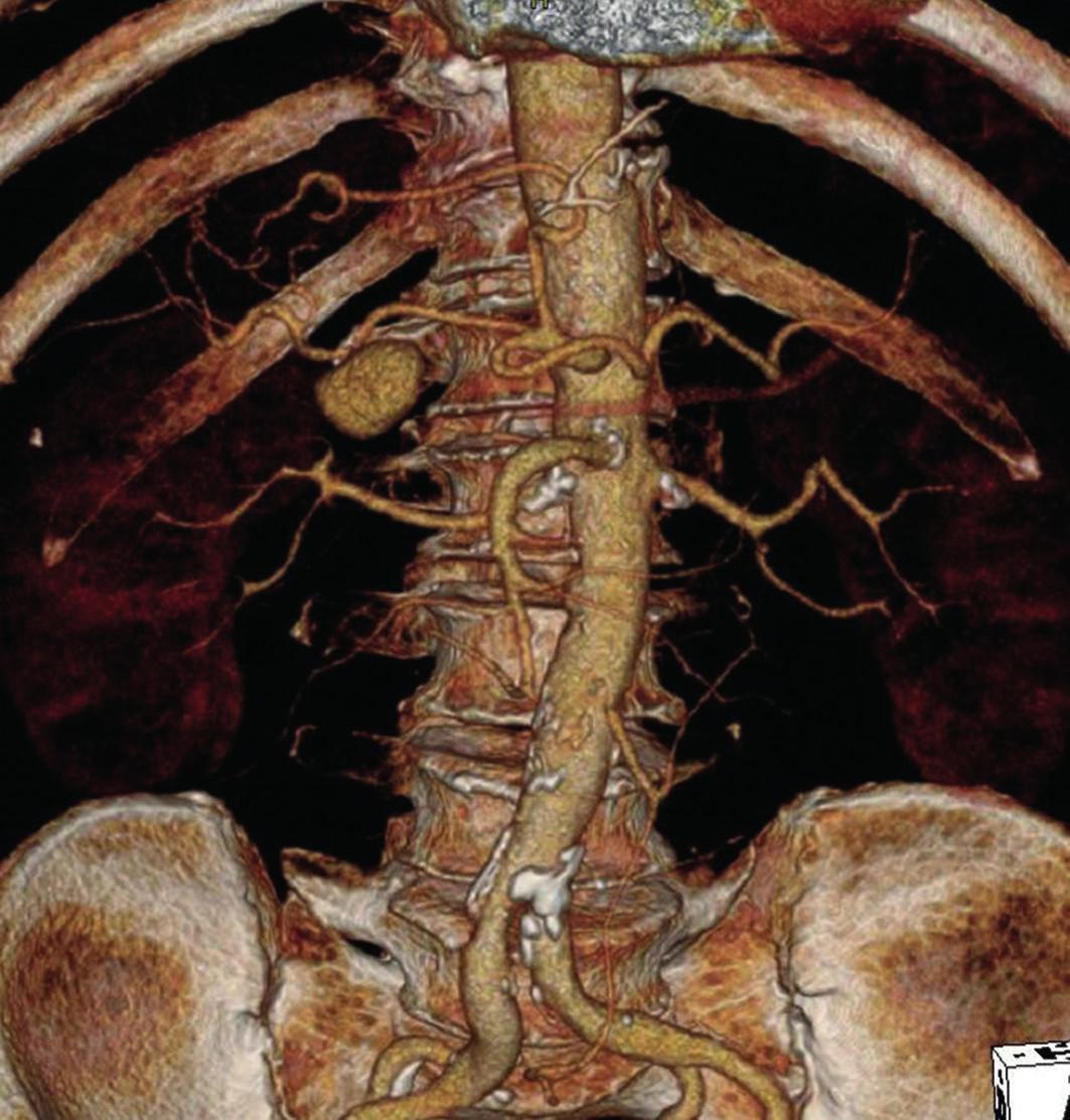 Pseudoaneuryzma a. hepatica v místě odstupu a. gastroduodenalis (3D CT-AG) Fig. 1: Pseudoaneurysm of hepatic artery at the place where gastroduodenal artery arises (3D-CT AG)