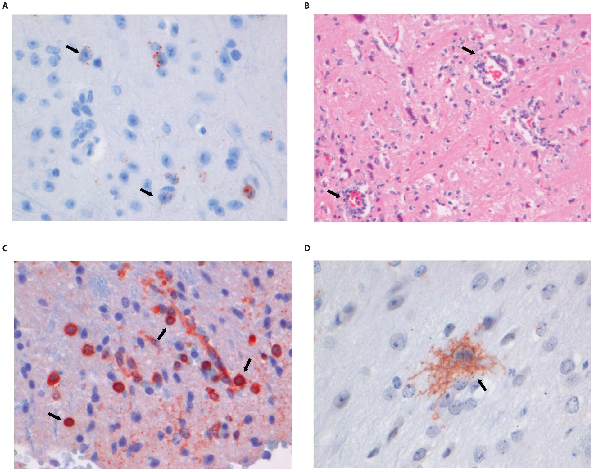 Histopathology of 8-week old BALB/c mice infected i.m. with 10<sup>6</sup> TCID<sub>50</sub> of DUVV-NL07.