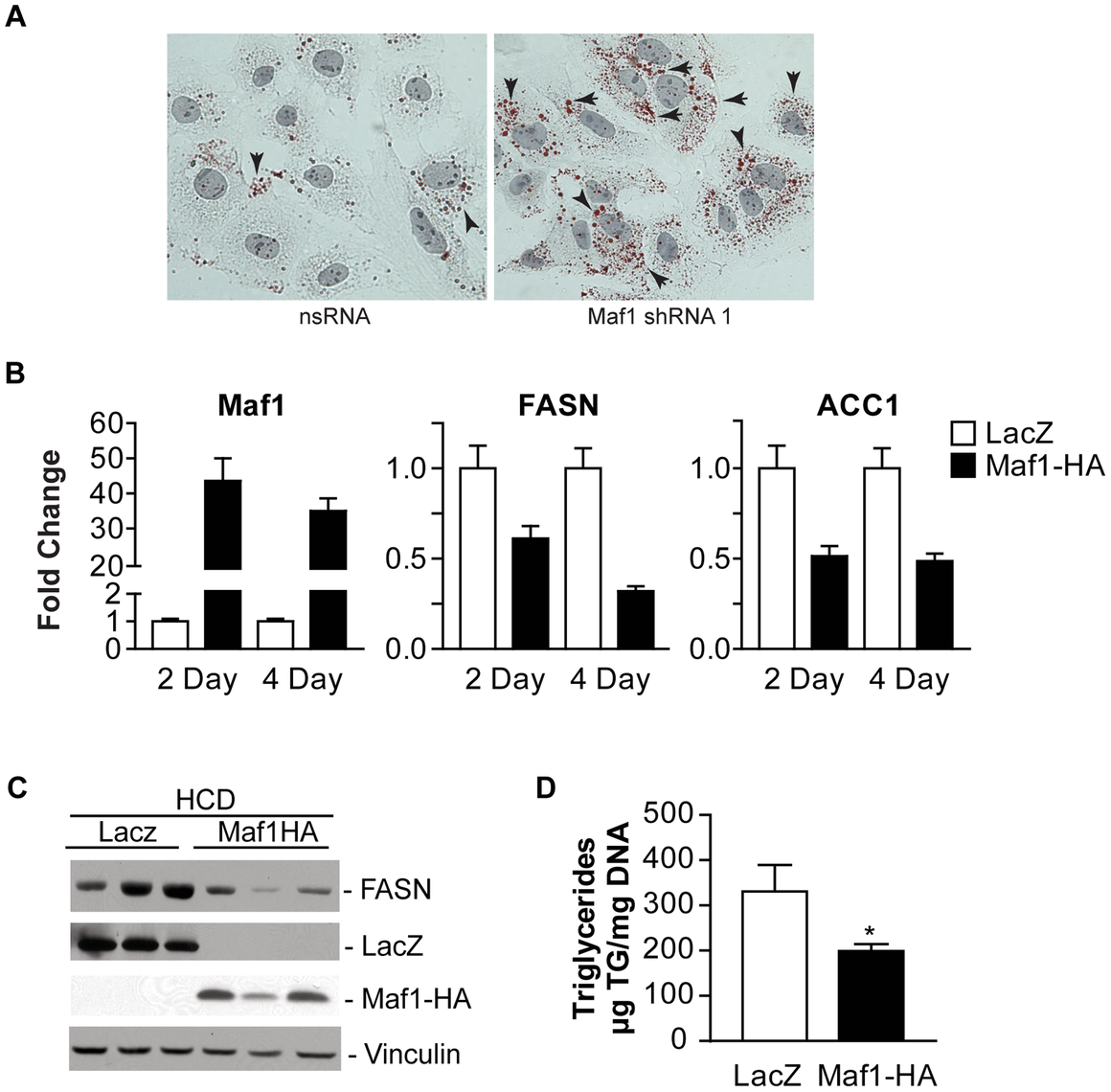 Maf1 controls intracellular lipid accumulation and de novo lipogenesis.