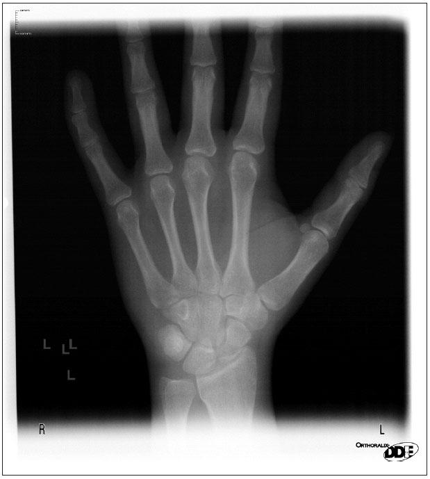 RTG levé ruky.