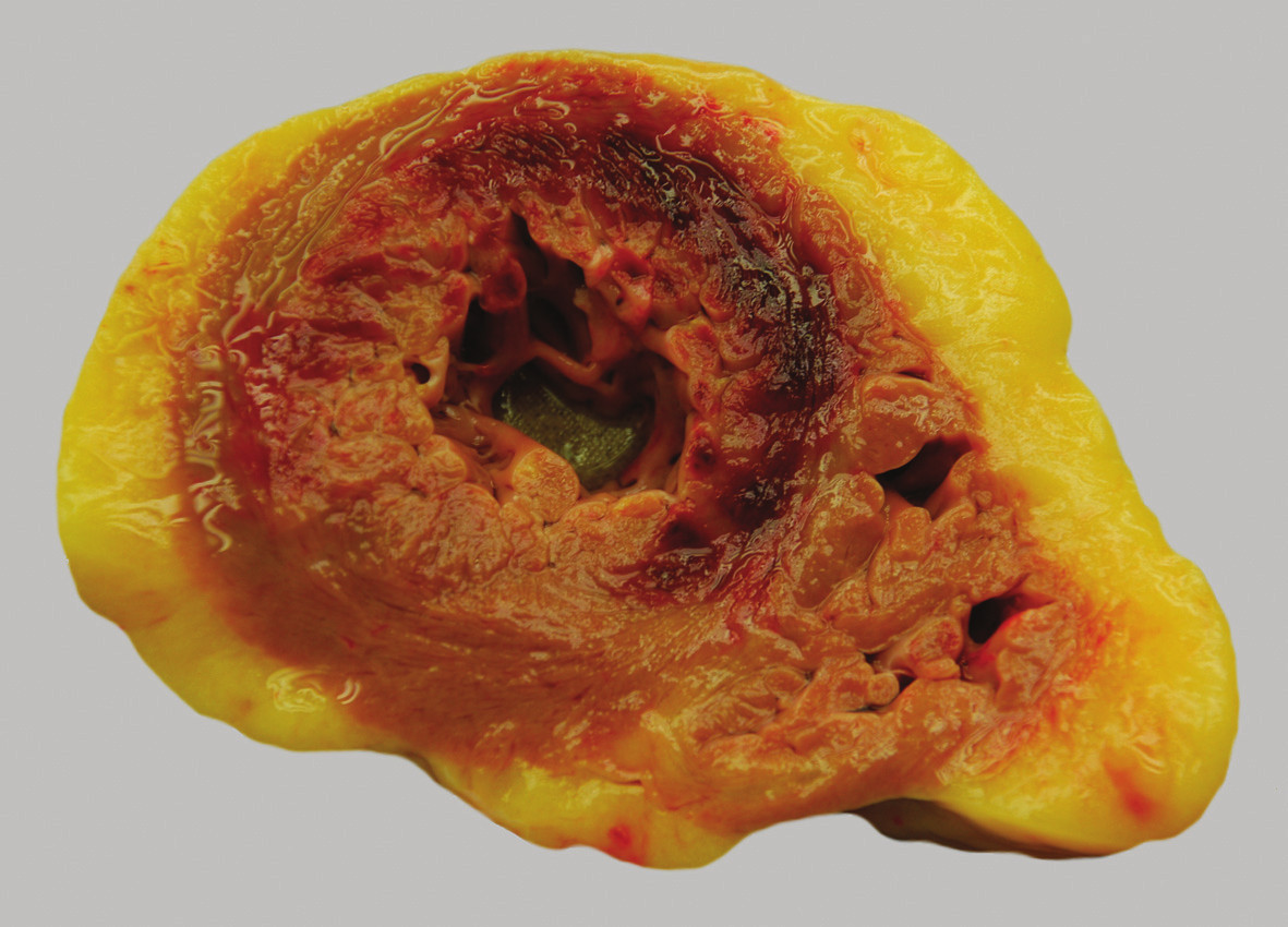 Kontuze myokardu přední stěny levé komory a mezikomorového septa.