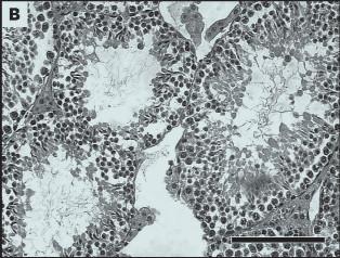 Vliv bisfenolu A na spermatogenesi. Tkáňové řezy testes. Kontrolní skupina bez ovlivnění (A) a experimentální po ovlivnění bisfenolem A (B).