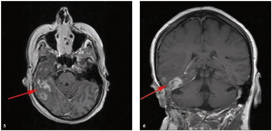 a 6. MR vyšetření mozku po aplikaci kontrastní látky, axiální a koronární rovina. Nepravidelná sytící se infiltrace temporálního laloku vpravo a okolních plen jsou směsí pooperačních, poradiačních změn a zbytkové infiltrace, vzájemně již z MR vyšetření neodlišitelných.