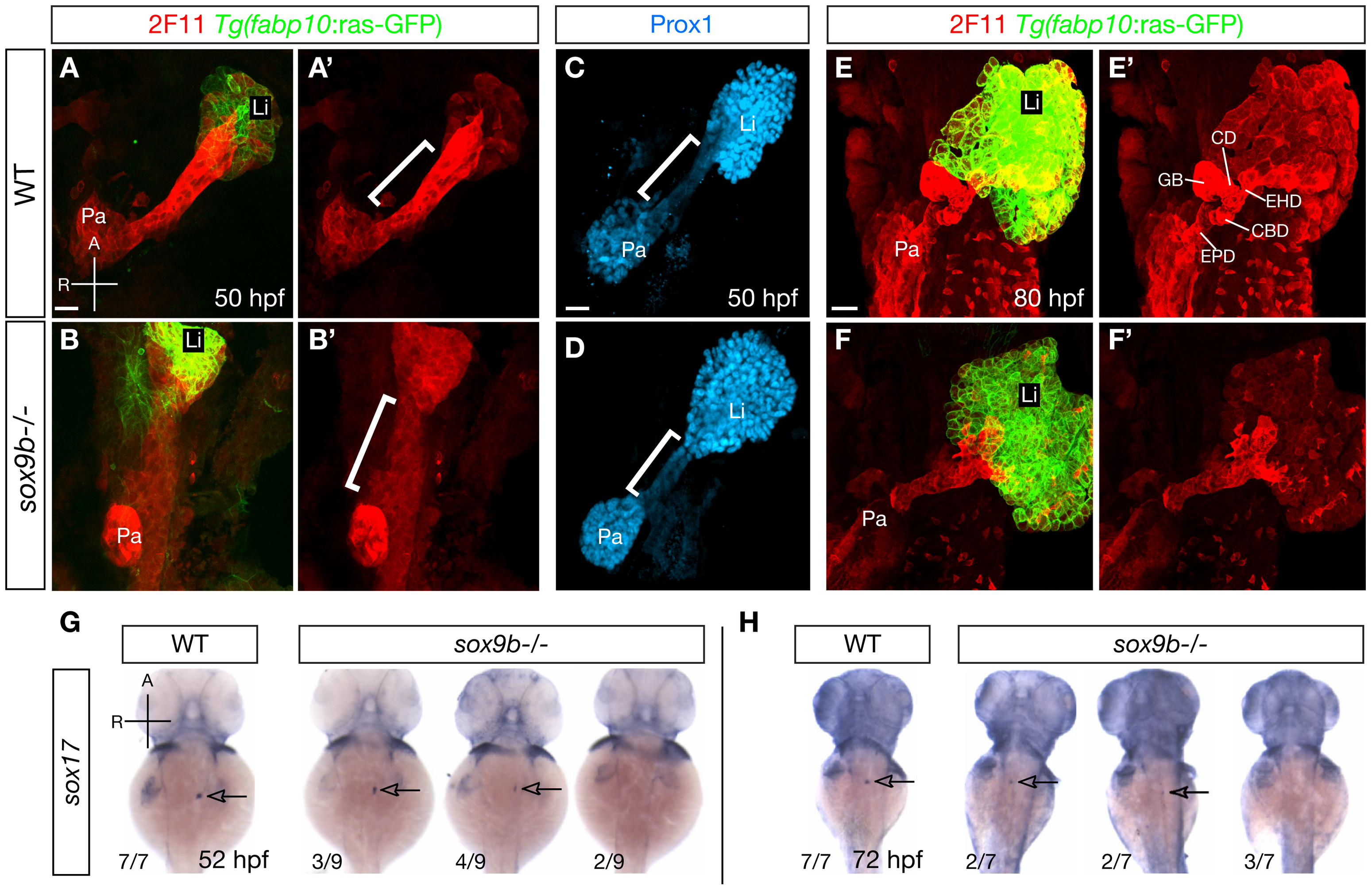 <i>sox9b</i> mutants display defective HPD patterning during organ development.