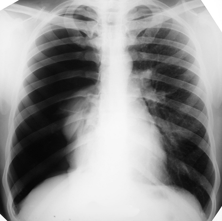 RTG hrudníka pri prijatí, zobrazujúca kompletný spontánny PNO vpravo