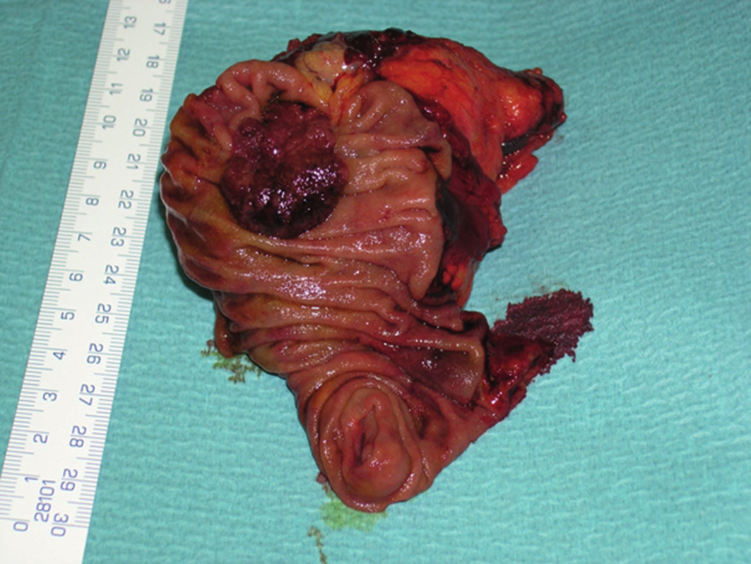 Exophytically growing adenocarcinoma of the papilla of Vater – resected specimen