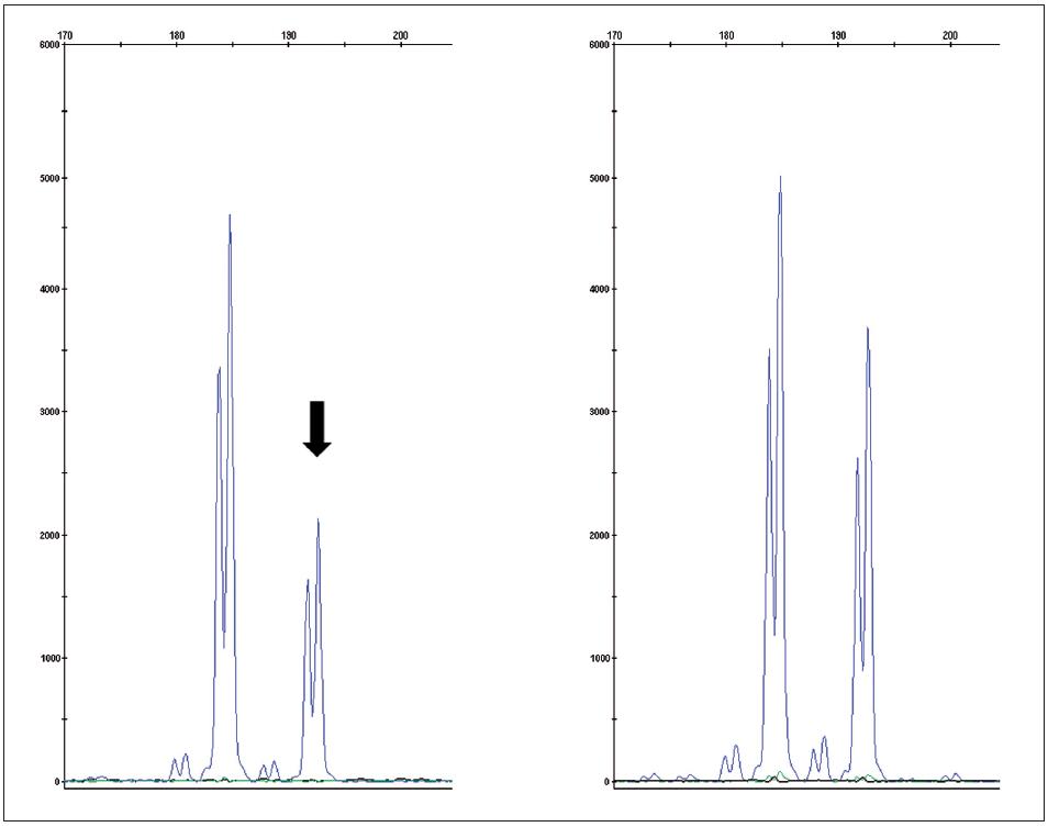 Fragmentační analýza mikrosatelitního markeru D3S1768S potvrzující ztrátu heterozygosity v nádorové tkáni (vlevo) oproti kontrole (zdravá tkáň – vpravo) Fig. 4. Fragment analysis of microsatelite marker D3S1768S proving loss of heteroyzgosity in tumor tissue (left) compared to control (normal tissue – right)