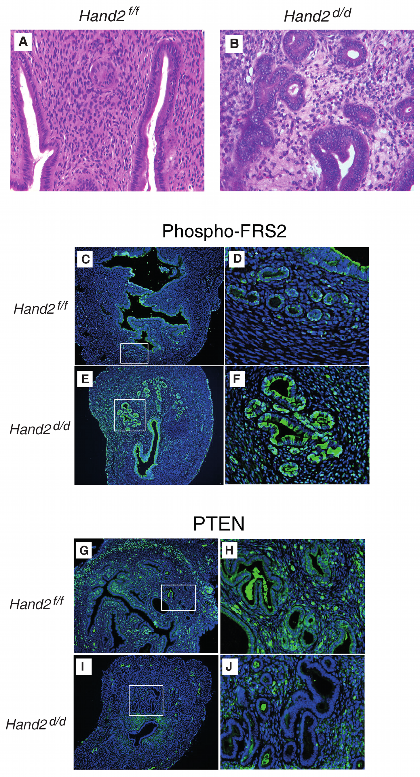 Endometrial pre-invasive neoplastic changes in <i>Hand2</i> conditional knock-out mice.