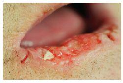 Erozivní forma spinocelulárního karcinomu dolního rtu (T2) indikovaného ke kvadratické excizi