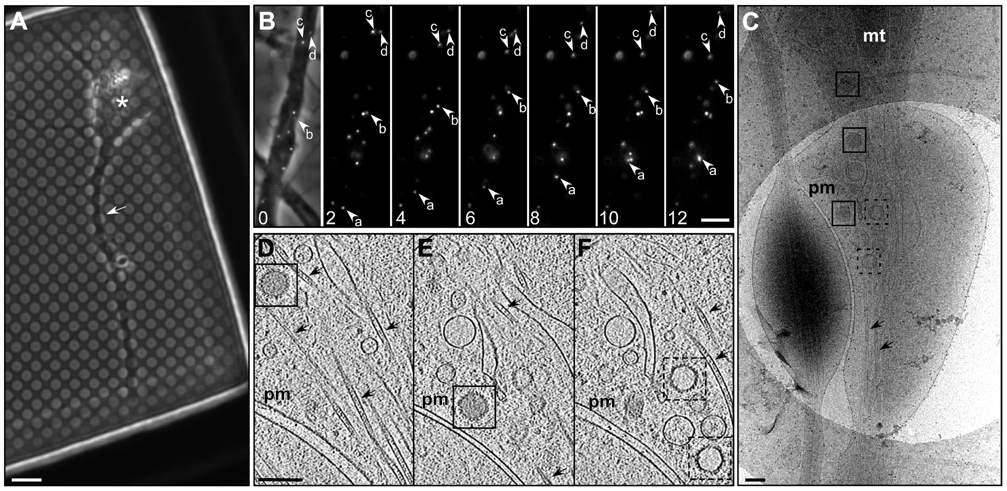 Transport of HSV1 capsids in neurons during egress.