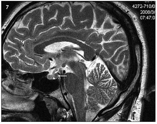 Ukazuje tentýž pohled v T2 váženém MR obraze a sagitální rovině jako na obr. 6.