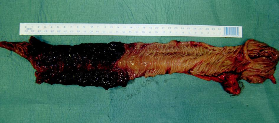 Stopkatý tumor distálního ilea – maligní melanom Fig. 4. The stem tumor of the distal ileum – melanoma malignum
