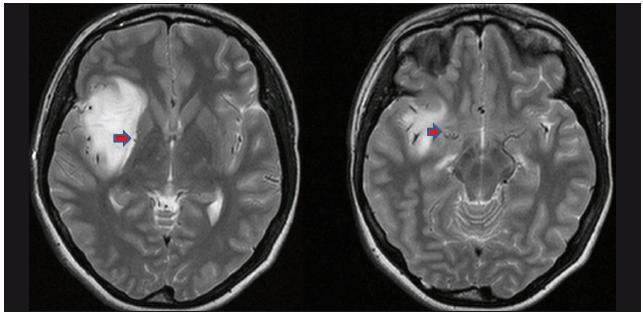 Vstupní T2 vážená MR pacientky N.4. A. Laterální lentikulostriatální perforátory odtlačeny na mediální okraj nádoru (laterální varianta). B. Odstup LLsA z M1 (A., B. – pozice LLsA označena šipkou).