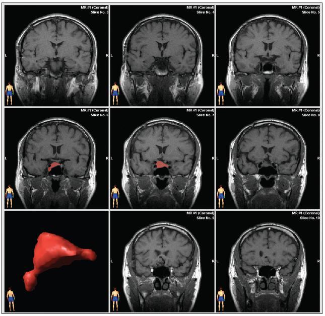 Výpočet objemu rezidua adenomu pomocí bitmapové manuální segmentace (neuronavigace fy BrainLab) s výsledným prostorovým zobrazením procesu.