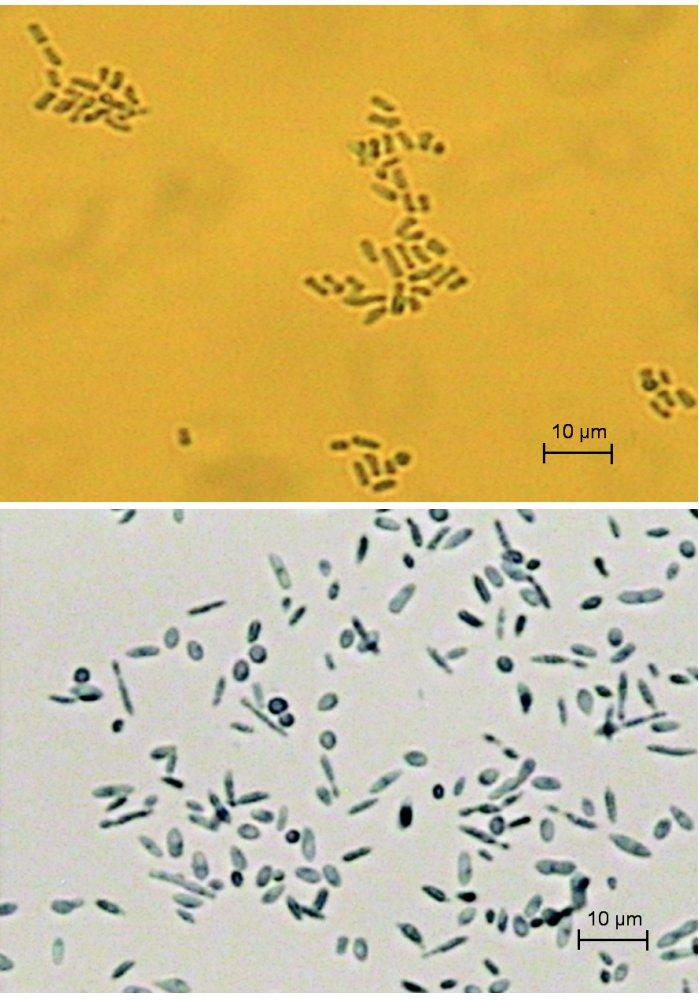 a, b A. kalrae, artrokonídiá, fuziformné a guľovité konídiá (Sabouraudov agar, vláknitá forma, 25 °C, preparát v laktofenole) Fig. 2a, 2b Arthrographis kalrae, fusiform and spherical conidia (Sabouraud agar, filamentous form, 25°C, mount in lactophenol)