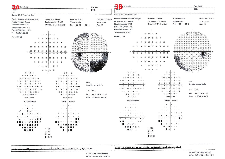 Perimetrické vyšetření u pacienta č. 4. 3A – OL – obloukovitý dolní nazální skotom, relativní horní temporální skotom, 3B – OP – dolní nazální skotom