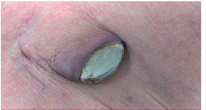 Lokální infekce kapsy kardiostimulátoru – dekubitus kapsy s výhřezem přístroje.