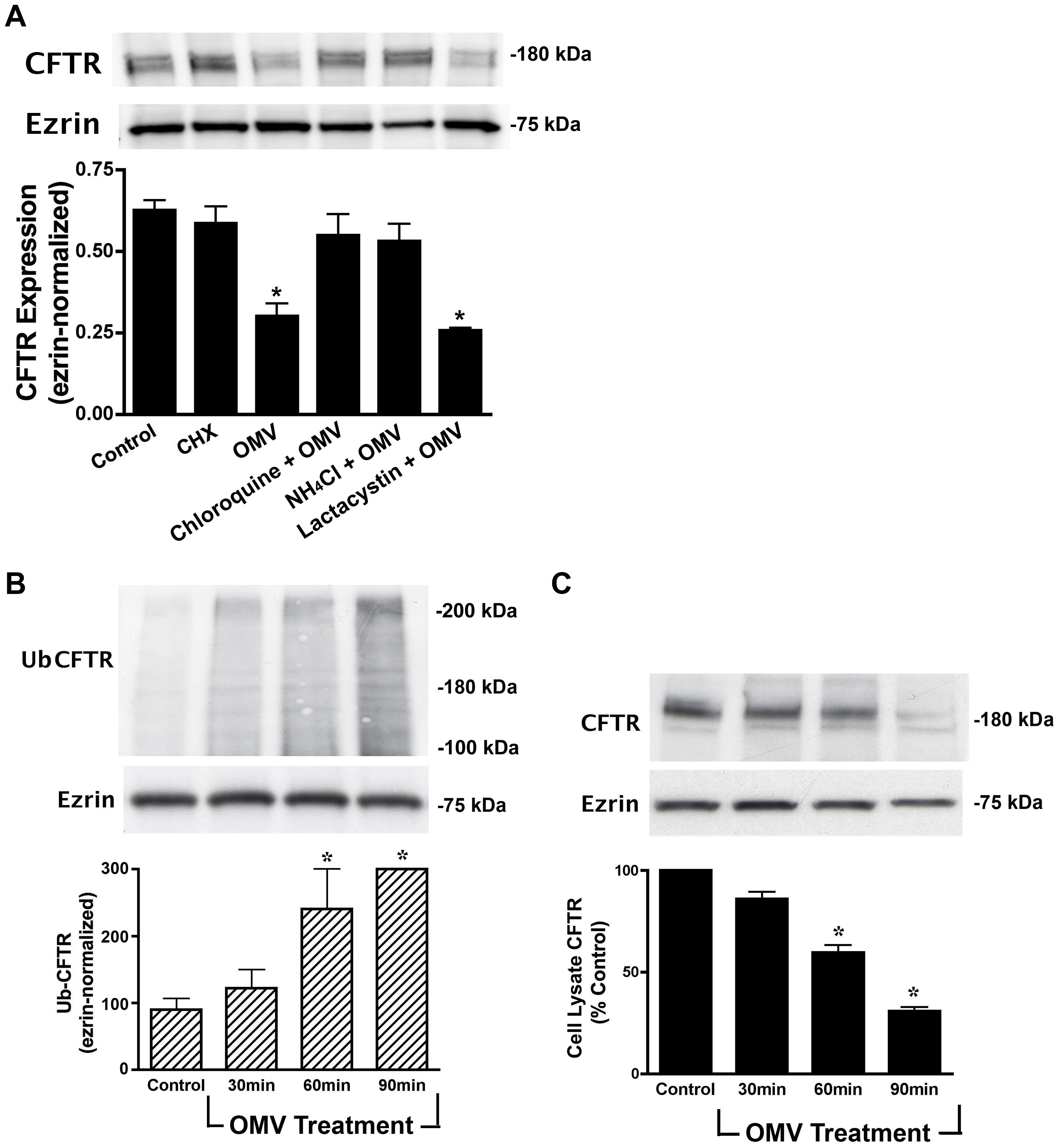 Cif induces the lysosomal-mediated degradation of CFTR in polarized human airway epithelial cells.