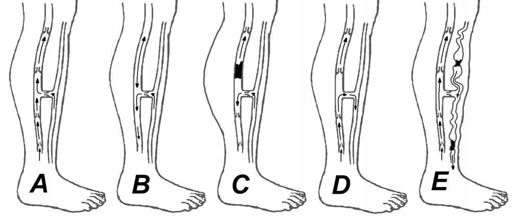 Etiológia vzniku CVI DK A – fyziologická funkcia hlbokého i povrchového venózneho systému DK,  B – insuficiencia chlopní hlbokého venózneho systému,  C – obštrukcia hlbokého systému (flebotrombóza), D – insuficiencia chlopní perforátorov,  E – insuficiencia povrchového systému