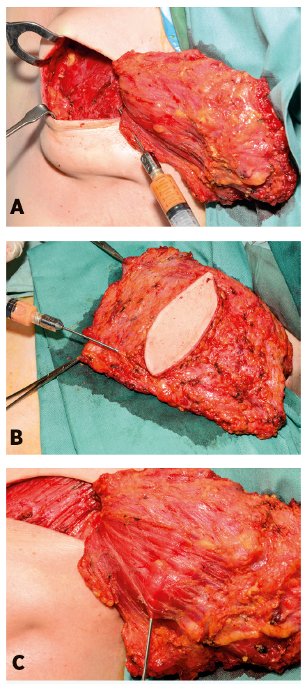 Application of the processed fat (a) into the pectoralis muscle and (b, c) into the latissimus dorsi muscle