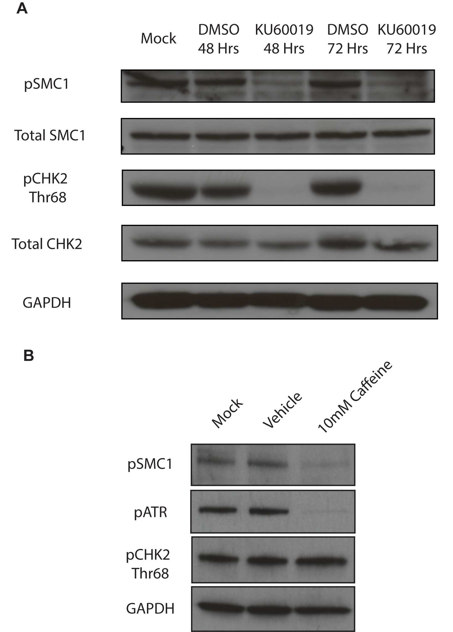 SMC1 is phosphorylated by both ATM and ATR.