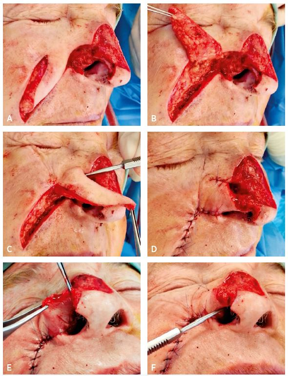 A–F. Sequence of nasal lining reconstruction with transposition nasolabial flap