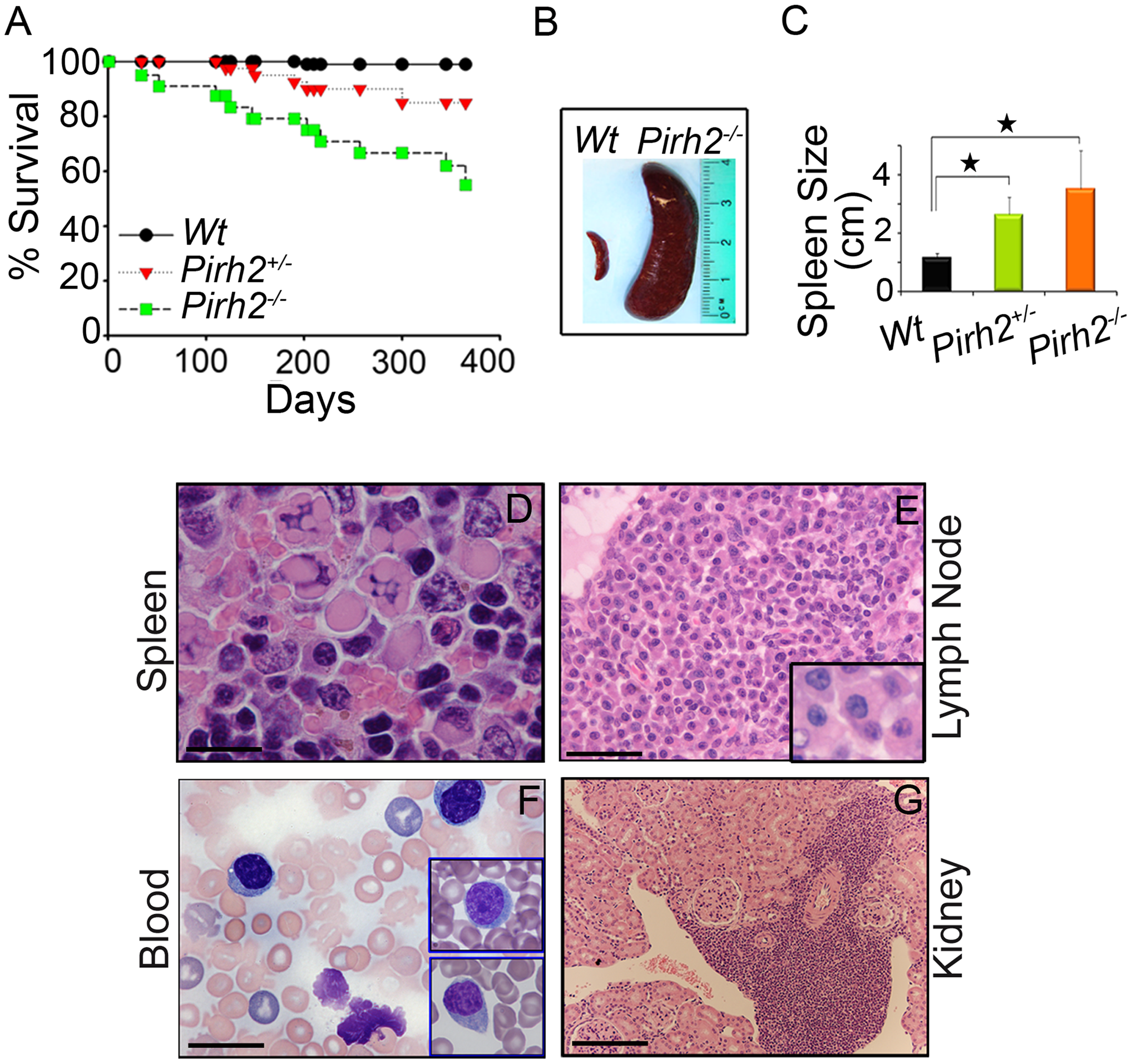 Shorter Life Span and Plasma Cell Hyperplasia of <i>Pirh2</i> Mutant Mice.