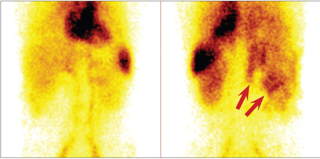 Statické snímky v předním (vlevo) a v zadním (vpravo) pohledu 150 minut po aplikaci. Je patrný zvýšený krevní pool v oblasti beder (šipky).