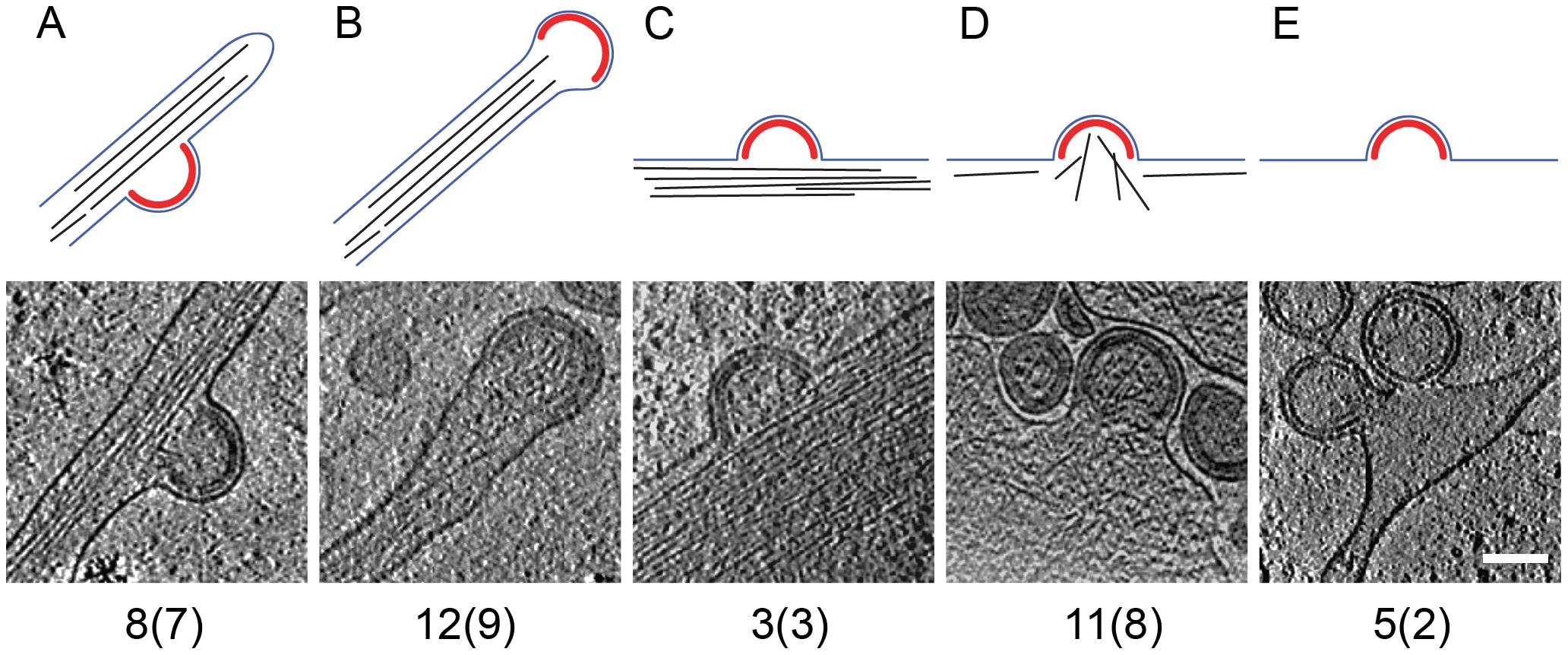 Filamentous actin at HIV-1 budding sites.