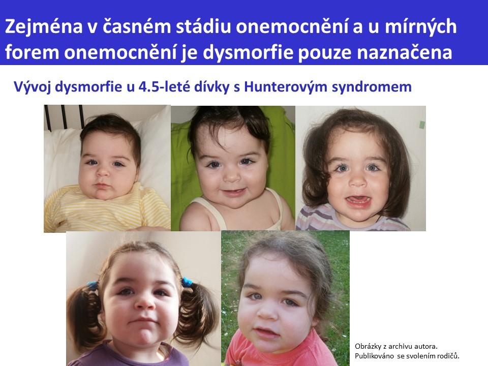 Mukopolysacharidóza typ II – Hunterův syndrom - 10