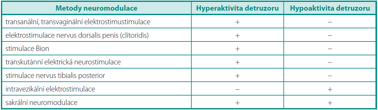 Indikace metody neuromodulace dle typu dysfunkce detruzoru Table 1. Indications of method of neuromodulation by the type of detrusor dysfunction