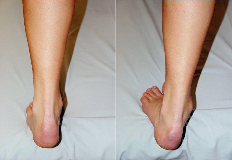 a,b Centrovaná opora a držení DK (a). Opora v supinačním postavení nohy, čéška směřuje mediálně mimo oporu. Postavení svědčí o nerovnováze stabilizátorů, a to nikoliv pouze v oblasti DK, ale i páteře a trupu (b).