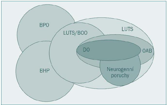 Vztah jednotlivých skupin a podskupin symptomů dolních močových cest u mužů. BPO - benigní prostatická obstrukce BHP - benigní hyperplazie prostaty (histologická diagnóza) DO - hyperaktivita detruzoru LUTS/BOO - symptomy dolních močových cest způsobené obstrukcí dolních močových cest OAB - hyperaktivita močového měchýře LUTS - symptomy dolních močových cest