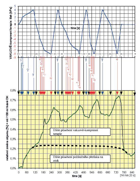 Objemové změny končetiny pacientky se závažnými periferně-cévními potížemi pod vlivem působení vakuově-kompresní terapie.