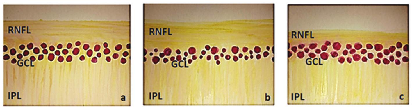 Schematické zobrazení vnitřních vrstev sítnice, (RNFL – vrstva nervových vláken, GCL – vrstva gangliových buněk a IPL – vnitřní plexiformní vrstva) a) normální nález, b) nález u HTG – snížení vrstvy GCL a nepatrně i RNFL, c) nález u NTG – snížení RNFL a nepatrně i GCL