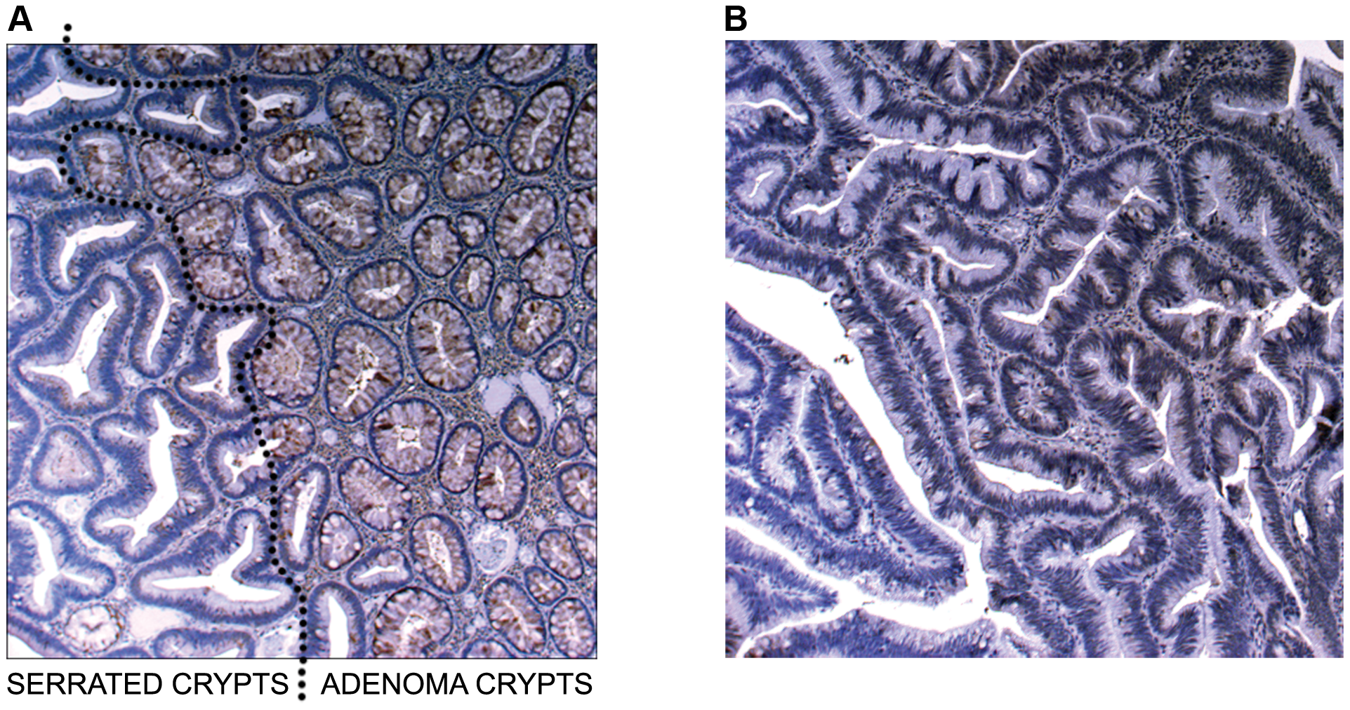 Image of IHC stains for SLIT2.