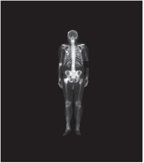 Scintigrafie skeletu s nálezem metastáz (kalva, levá parietální kost, sternum, obratle C3, Th7, L2, pravá kyčel, stydká kost, levá stehenní kost) 
