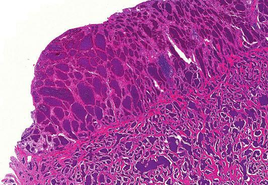Dobře diferencovaný neuroendokrinní tumor terminálního ilea, barvení HE (zvětšení 40x).