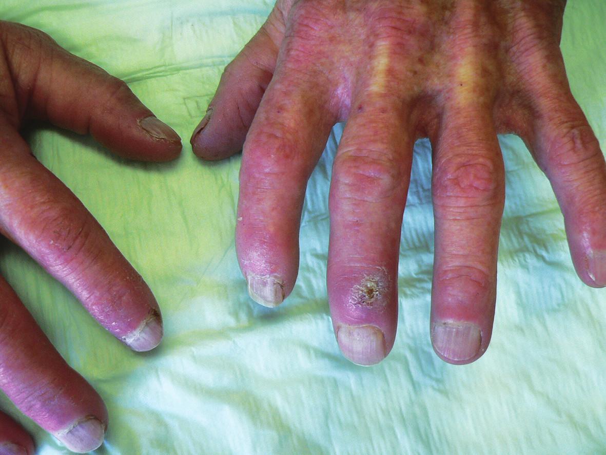 Hypertrobické ložisko na dorzu 3. prstu levé ruky