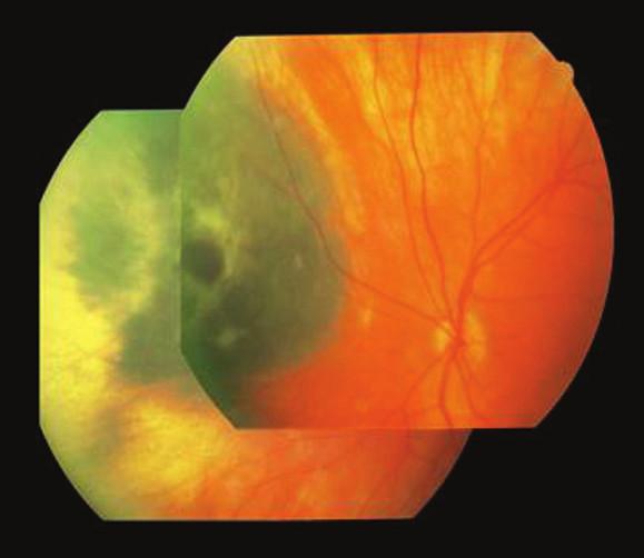 Pacient 2. Nazálne lokalizovaný MMCH v čase stanovenia diagnózy, ľavé oko