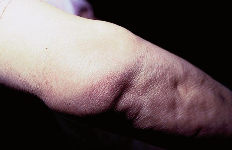 Podkožní sarkoidóza.