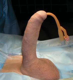 Korekce Peyronieho onemocnění prostřednictvím samotné inflatabilní penilní protézy (do 25°). Narovnávání pokračuje s používáním. A - před operací , B - po operaci.